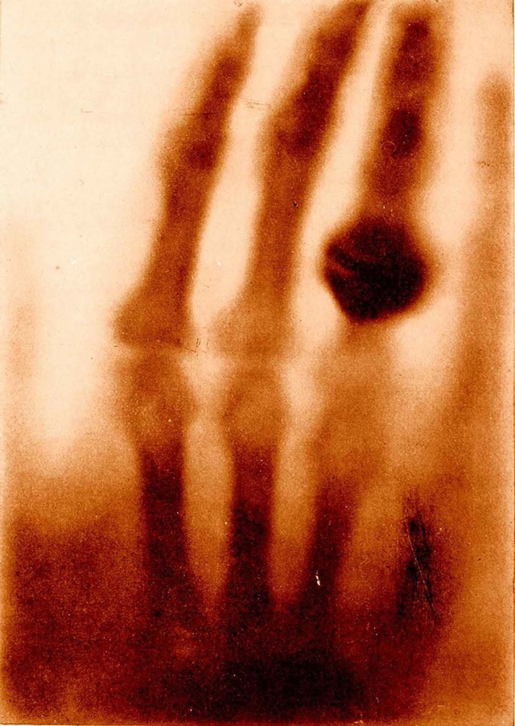 The Hand of Mrs. Wilhelm Röntgen, Wilhelm Conrad Röntgen, 1895