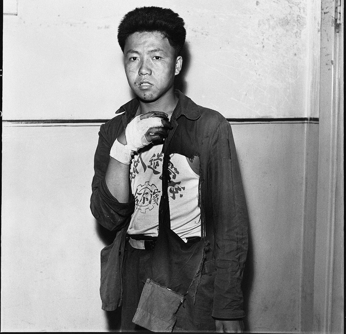 injured Red Guard during the Cultural Revolution