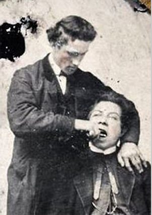 Staged tooth extraction - a classic picture of the Victorian Era dentistry.