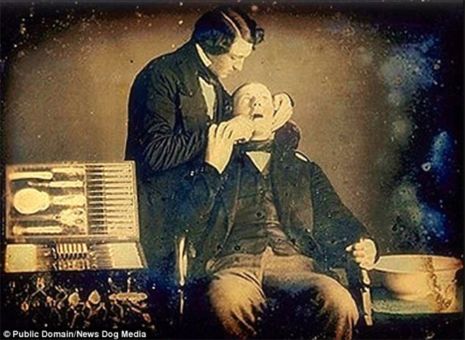 1855 year. The American dentist makes the removal.