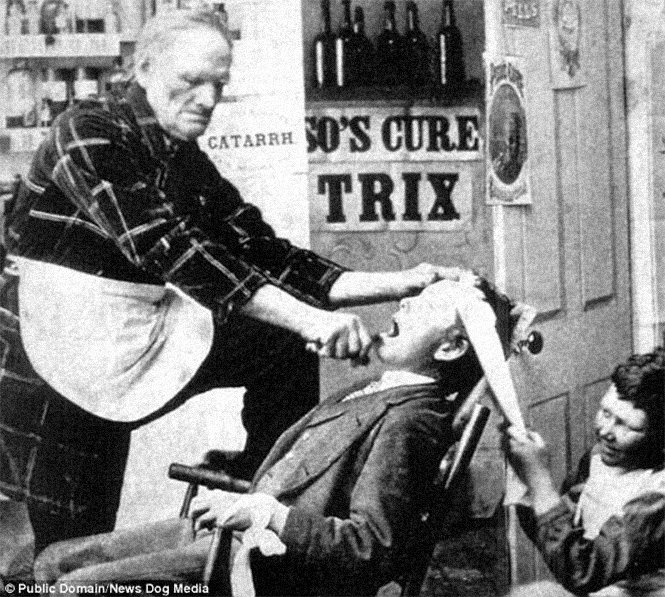 1870s, Britain. It is clearly visible how the patient is fixed with a towel.