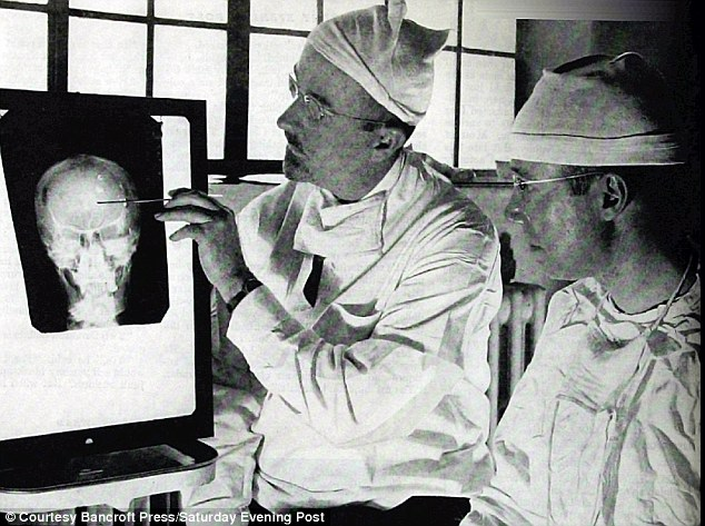 Dr.Watts examining the x-ray image of Rosemary Kennedy before the lobotomy