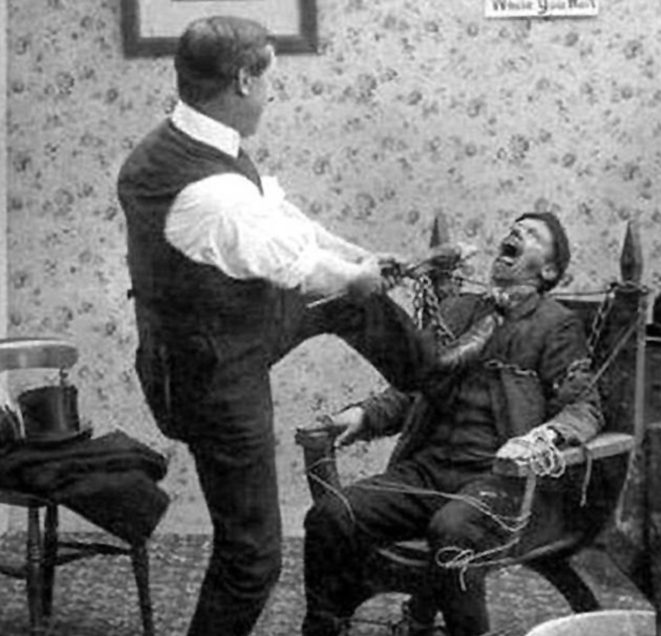 Painless tooth extraction during Victorian Era Dentistry