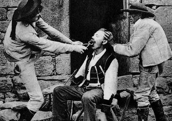 The process of removing a diseased tooth, Victorian Era Dentistry