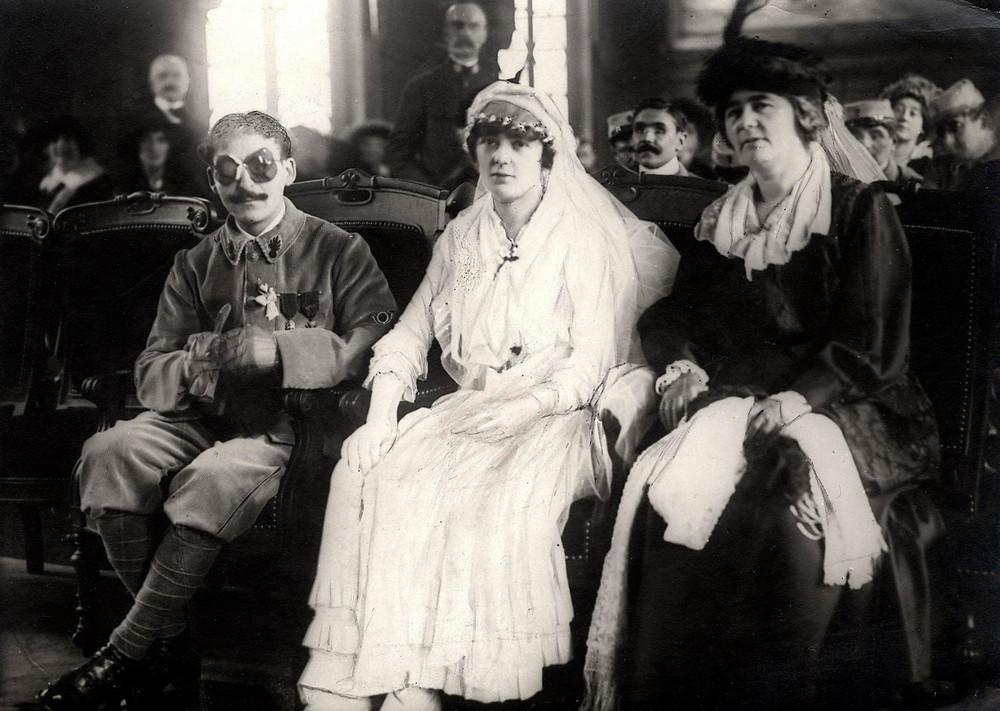 Bizarre photos of WWI Veteran's marriage, 1921